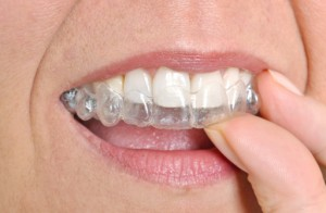 Straightens Teeth