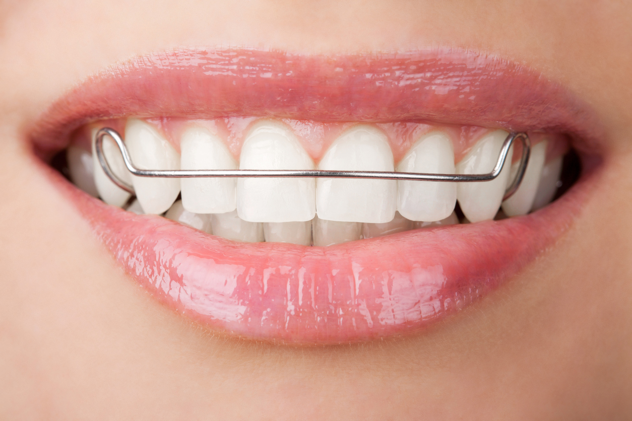 types of orthodontic dental appliances